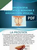 HIPERTROFIA PROSTATICA BENIGNA E IRRIGACCION VESICAL.pptx
