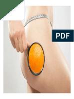 Anti Cellulite, Was Hilft Wirklich Gegen Cellulite, Cellulite Wegtrainieren, Cellulite Bei Männern