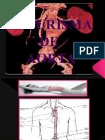 aneurismadeaortaabdominal-140128103655-phpapp01