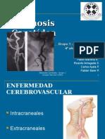 estenosiscarotdeacompleto-111114154640-phpapp02