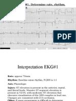 EKG Self Study Guide