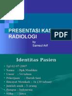 samul_kasus