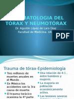 Traumatologia Del Trax y Neumotrax