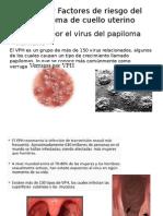 Causas y Factores de Riesgo Del Carcinoma