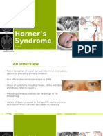Horner's Syndrome