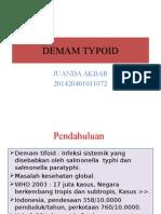 DEMAM TYPOID PPT