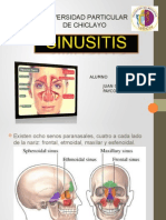 Sinusitis Jc 2015