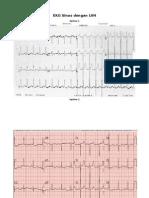EKG Sinus Dengan LVH Dan Sinus Dengan VES