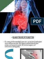 La gastroenteritis.pptx