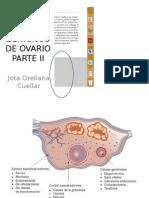 Tumores Benignos de Ovario