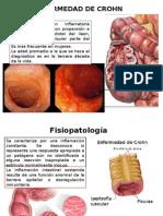 Crohn y Fistulas