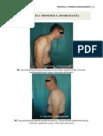 2. spondilita anchilozanta