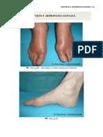 9. artropatia gutoasa