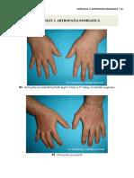 3. artropatia psoriazica