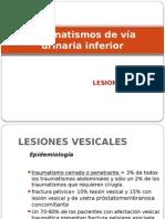 Lesion Vesical