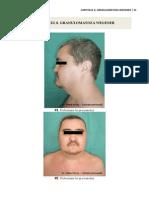 8. Granulomatoza Wegener
