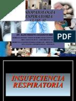 Iras Clase 02 Fisiopatología Respiratoria. Dr Casanova