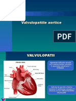 stenoza-aortica