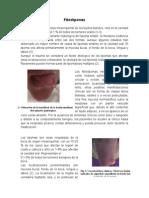 Fibrolipoma, patología
