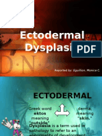 Ectodermal Dysplasia-EGUILLION.pptx