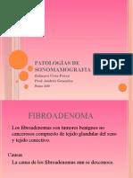 patologias de sonomamografia
