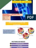 Adenocarcinoma de Próstata