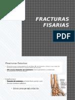 Fracturas fisarias 2