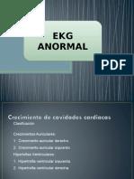 Ekg Anormal