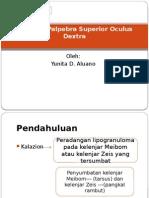 Laporan Kasus Kalazion Palpebra Superior Oculus Dextra