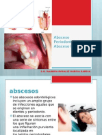 22 Abceso Periodontal