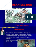 CESAREAN SECTION.ppt