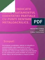 Punti Dentare Metalo-Acrilice