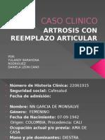 Caso Clinico Artrosis