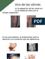 Varices, Cirugía Vascular