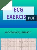 EKG Exercises