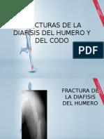 Fracturas de La Diafisis Del Humero y Del