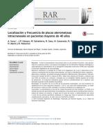 Localización y frecuencia de placas ateromatosas intracraneales en pacientes mayores de 40 años