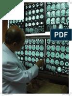 ภาวะสมองเสื่อมในผู้ป่วยโรคพาร์กินสัน.pdf