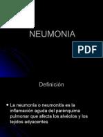 neumonia-091030134340-phpapp02.ppt