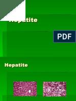 hepatite