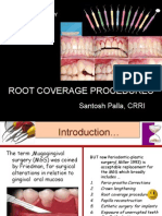 Root Coverage Procedures Sant