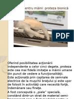 Proteza bionică 2