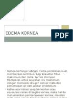 Edema Kornea