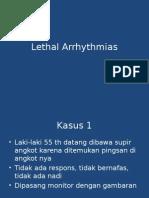 Aritmia Letal