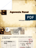 Agenesia renal