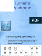 Turner Syndrome Ppt