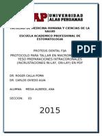 Inlay Onlay Protocolo