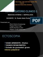 CASO CLINICO_ Nefropatia Lupica