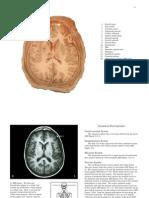 Atlas of Brain