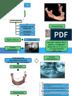 Carcinoma Ameloblastico